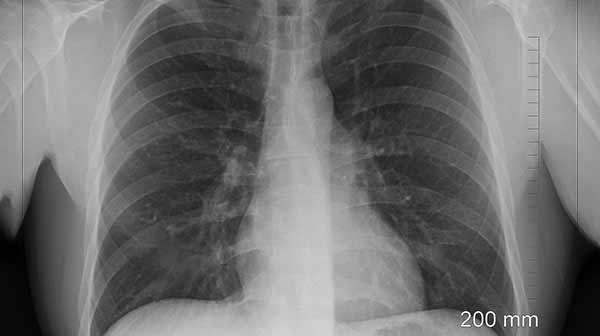 Röntgenbild vom Brustkorb